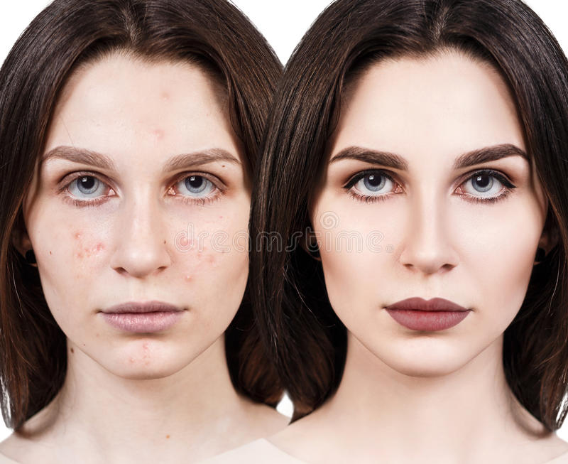 Menina com acne antes e depois do tratamento fotografia de stock