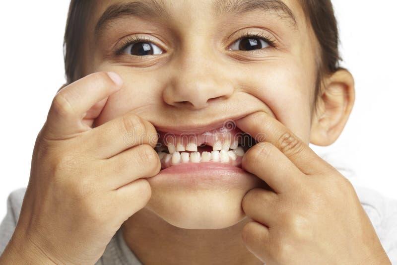 Menina com falta do dente anterior fotografia de stock