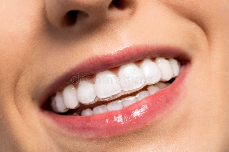 Menina de sorriso que veste cintas invisíveis dos dentes fotos de stock