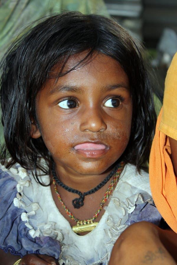 Menina deficiente bonito fotos de stock royalty free