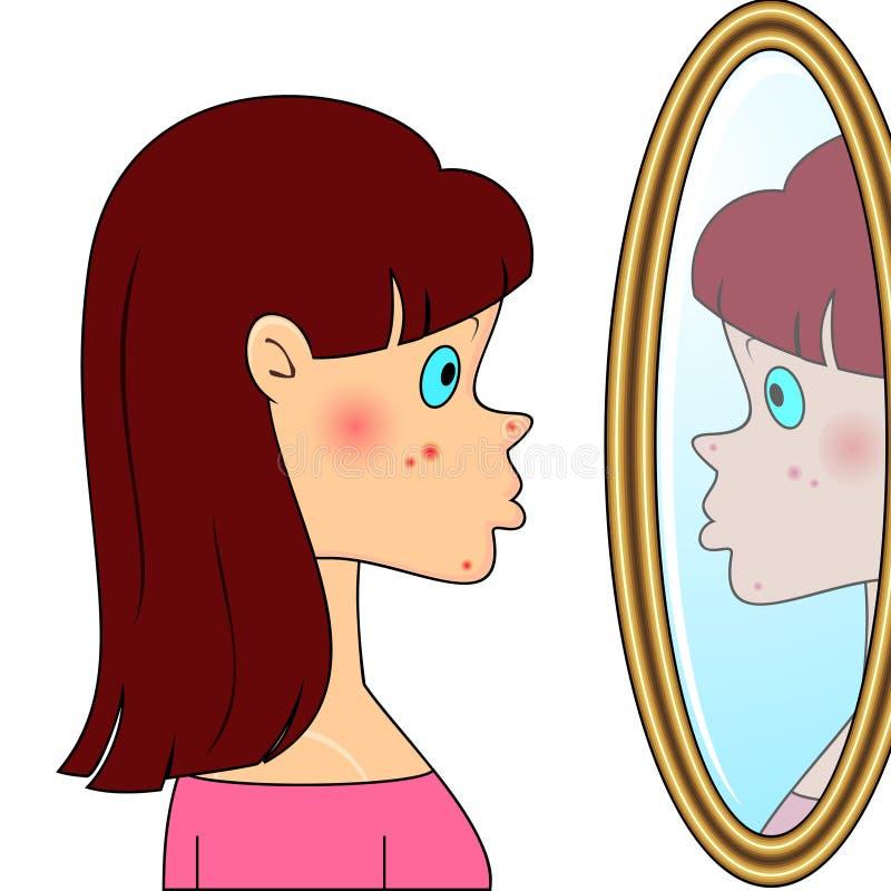 Menina do adolescente com acne ilustração royalty free