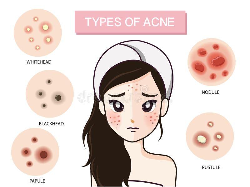 Menina e tipo de acne ilustração do vetor