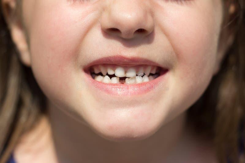 Menina que mostra sua falta do dente anterior imagem de stock