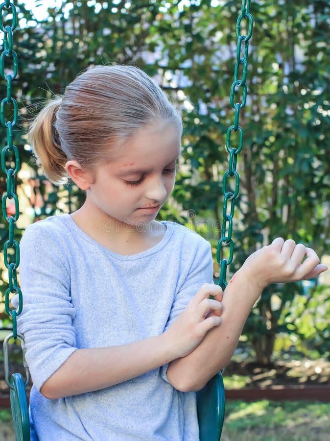 Menina que risca a eczema sarnento no balanço imagens de stock