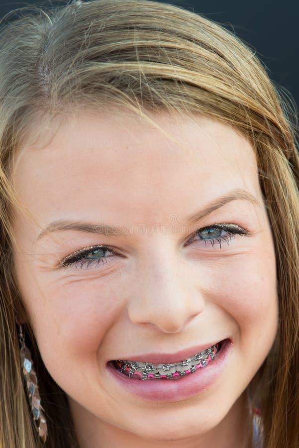Menina teenaged de sorriso com cintas foto de stock royalty free