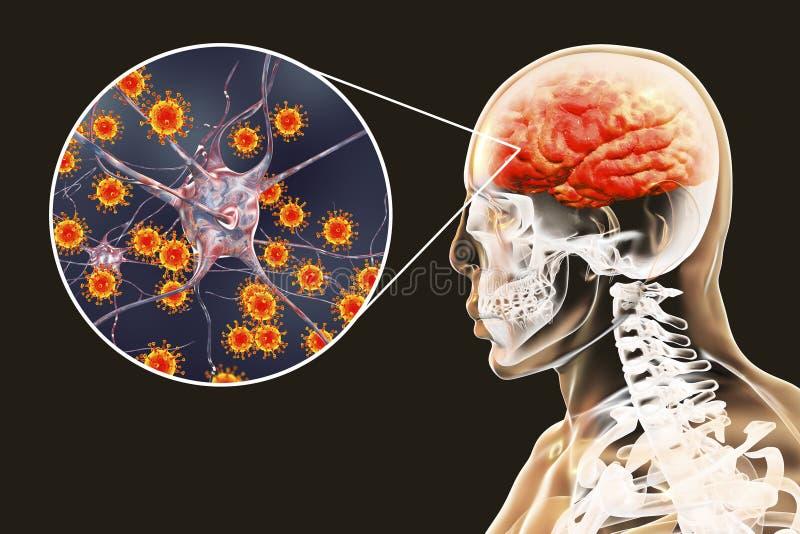 Meningite viral e encefalite, conceito médico ilustração stock
