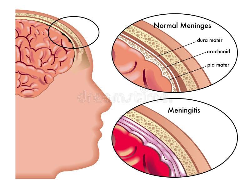 Meningitis. Illustration of a meningitis infection