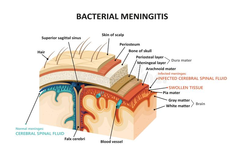 Meningitis bacteriana libre illustration