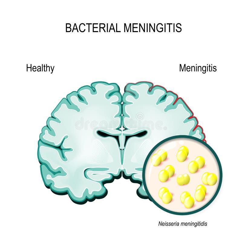 meningitis Cerebro humano y bacterias meningocócicas stock de ilustración