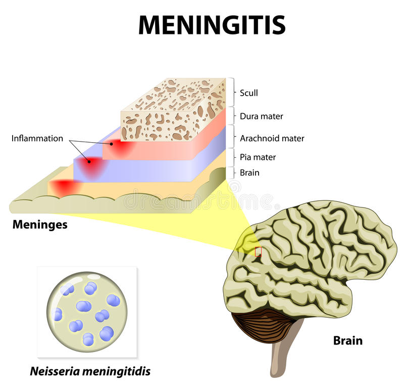 Meningitis stock vector illustration of influenzae acute 55955426 download meningitis stock vector illustration of influenzae acute 55955426 ccuart Choice Image