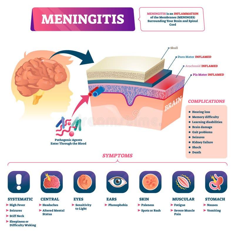 Meningitis vector illustration. Labeled brain membrane inflammation scheme. stock illustration