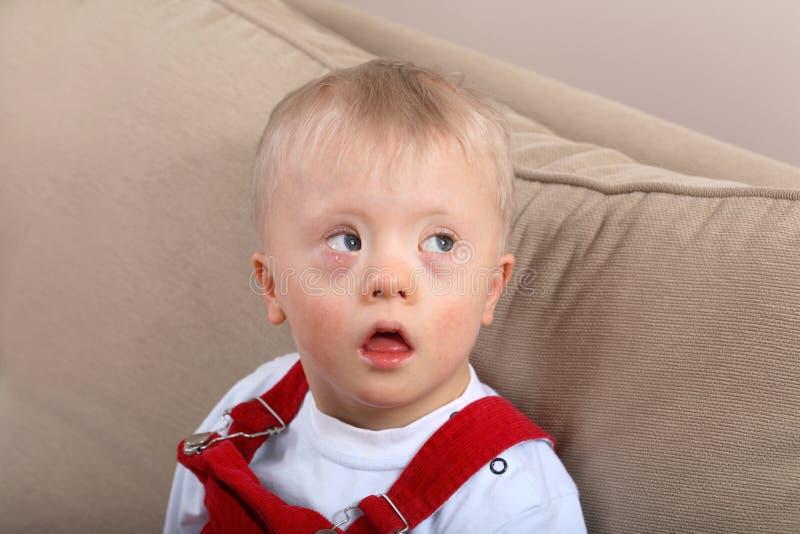 Menino com Down Syndrome imagens de stock