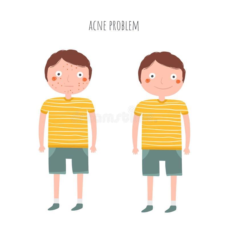 Menino com espinha, problema da acne Adolescente antes e depois da acne ilustração stock