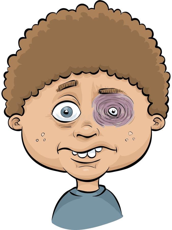 Menino com olho roxo ilustração do vetor