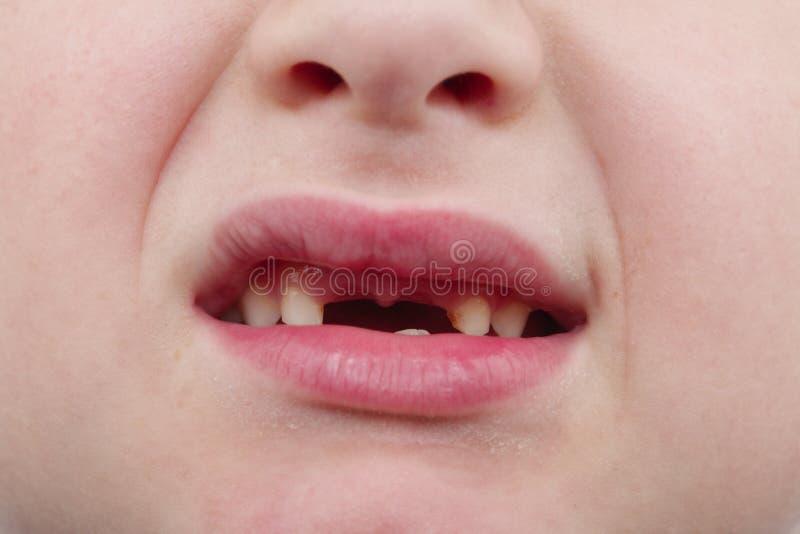Menino considerável feliz que mostra seus dentes em mudança fotografia de stock