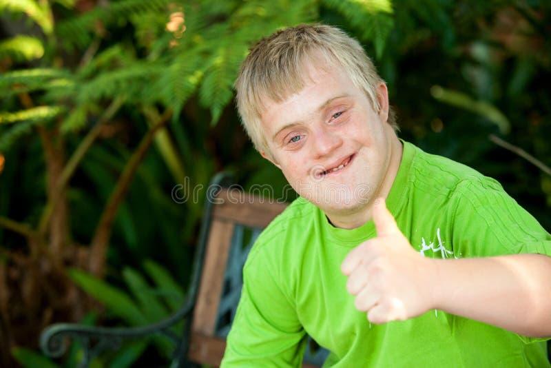Menino deficiente bonito que mostra os polegares acima fora. fotos de stock royalty free