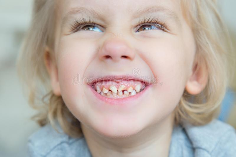Menino Dentes ruins imagem de stock royalty free