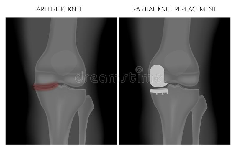 Meniscus _Arthritic knee and Partial knee replacement. Vector illustration. Anatomy, front x-ray of an arthritic knee joint and a knee after unicompartmental or stock illustration