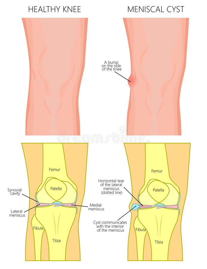 Meniscus _Meniscal cyst front view stock illustration