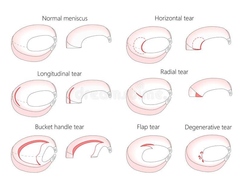 Meniscus _Tear types stock vector. Illustration of bone - 113233895