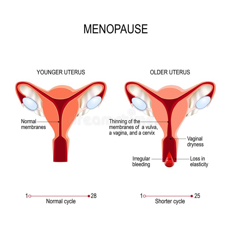Menopause or climacteric. Younger and older women uterus royalty free illustration