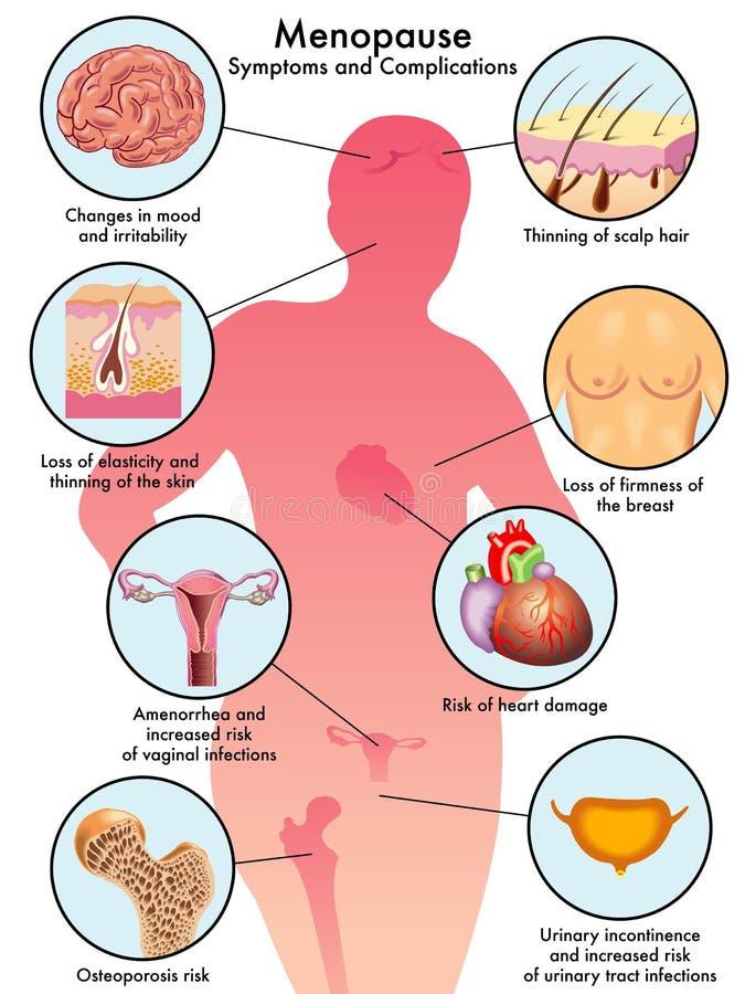 Menopause stock illustration