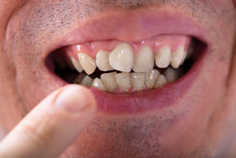 Mens die zijn tanden tonen stock fotografie