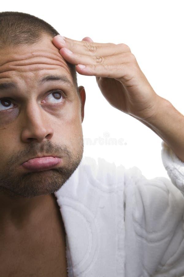 Mens en zijn balding hoofd royalty-vrije stock afbeelding