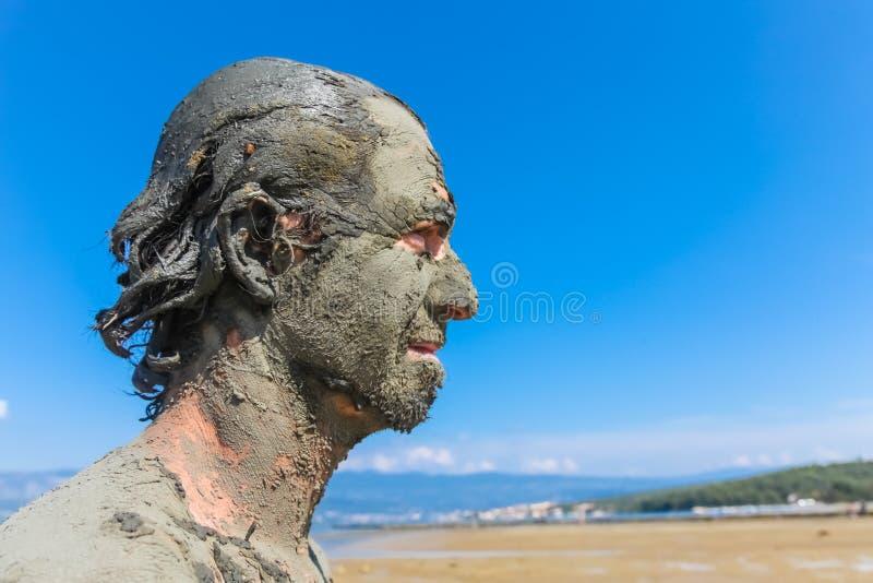 Mens met het helen van modder wordt gesmeerd die stock afbeelding