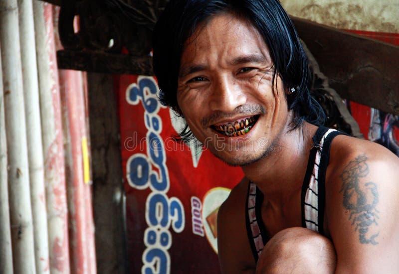 Mens met zwarte tandenglimlach royalty-vrije stock foto