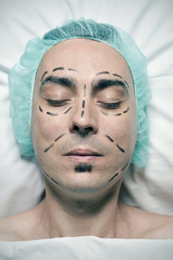 Mens ongeveer om een plastische chirurgie te hebben stock fotografie