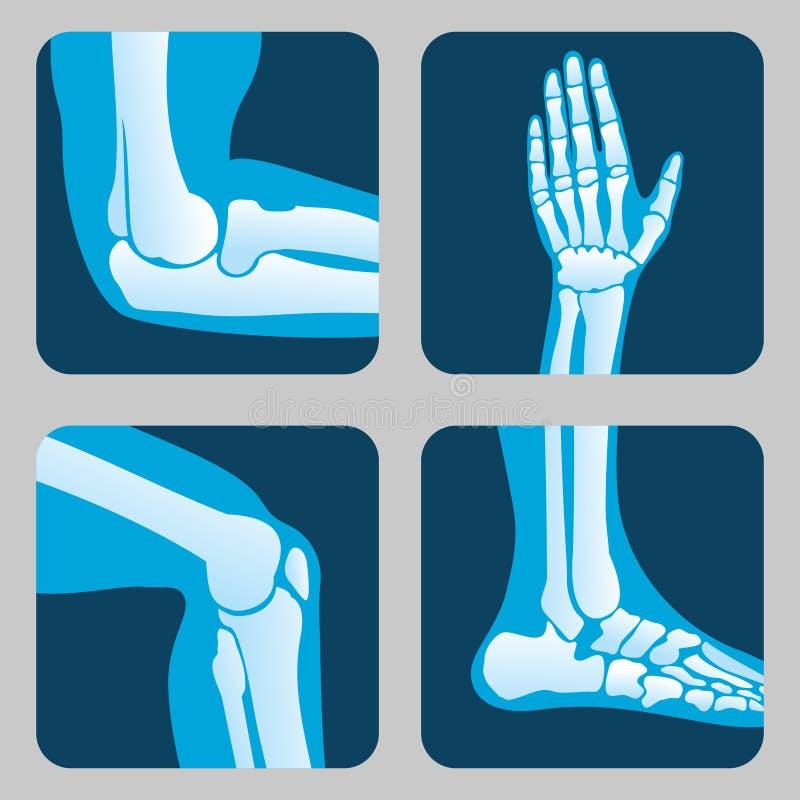Menschliche Gelenke, Knie und Ellbogen, medizinischer orthopädischer Vektorsatz des Knöchelhandgelenkes stock abbildung