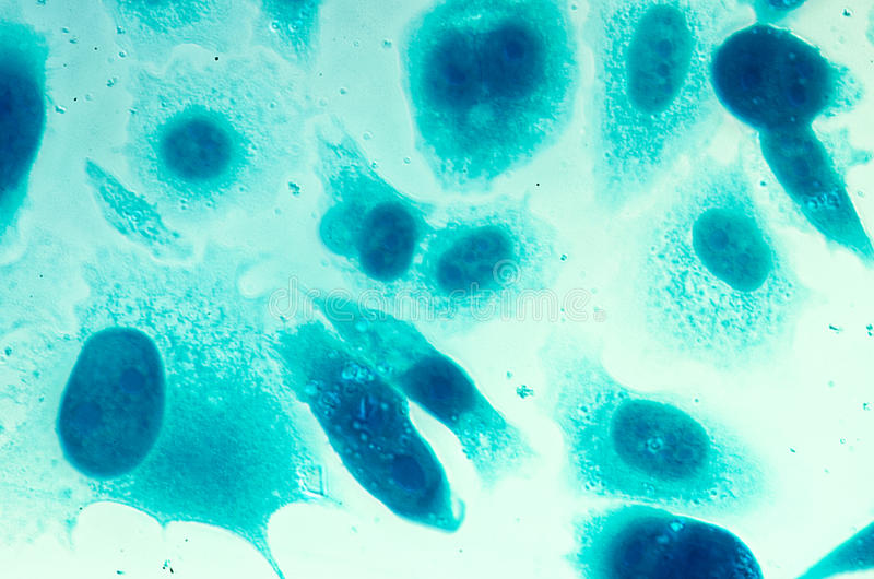 Menschliche Krebszellen der Prostata PC-3 lizenzfreies stockbild