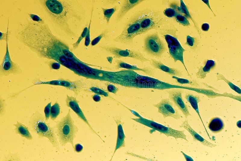 Menschliche Krebszellen der Prostata PC-3 lizenzfreies stockfoto