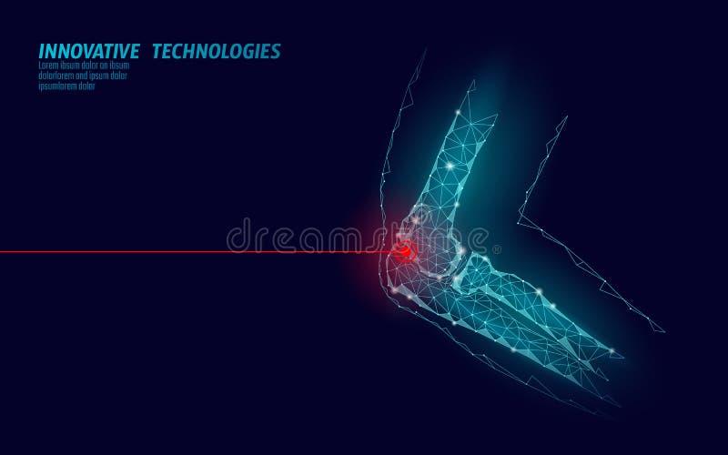 Menschliche Modellvektorillustration des Ellbogengelenkes 3d Technologieheilungs-Schmerzbehandlung des niedrigen Polyentwurfs zuk vektor abbildung