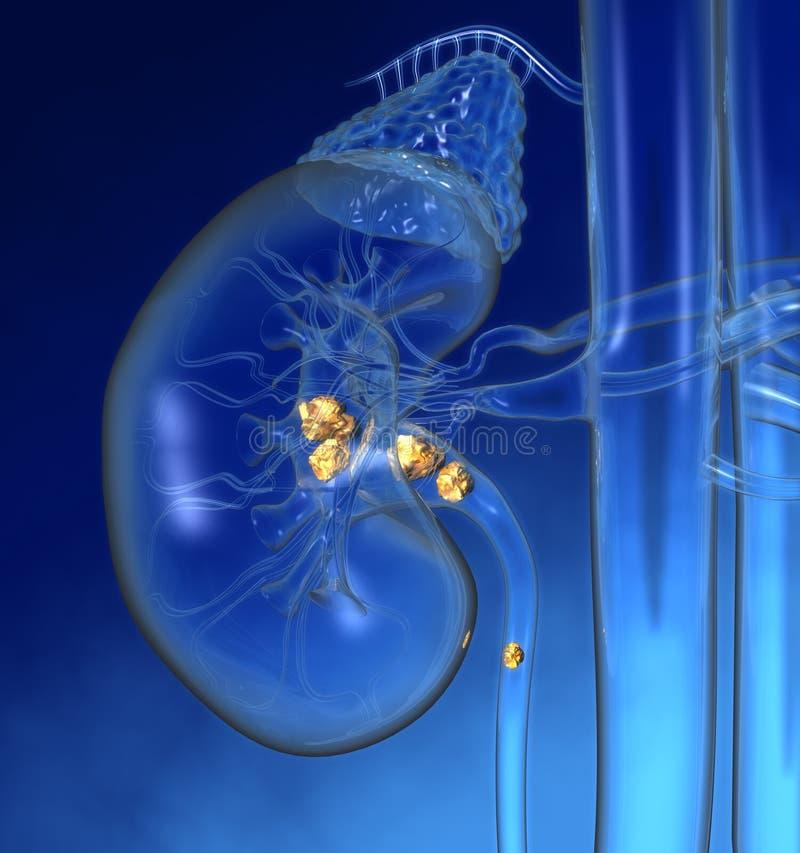 Menschliche Niere mit hervorgehobenen Nierensteinen, bunte medizinisch Illustration 3D stockfotos