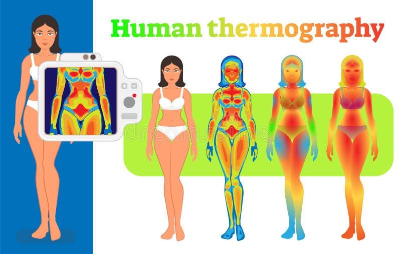 Menschliche Thermographieillustration lizenzfreie abbildung