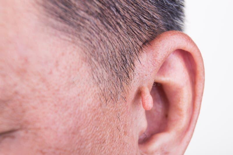 Menschliche Veränderung mit Extrawachstum auf Ohr stockfotografie