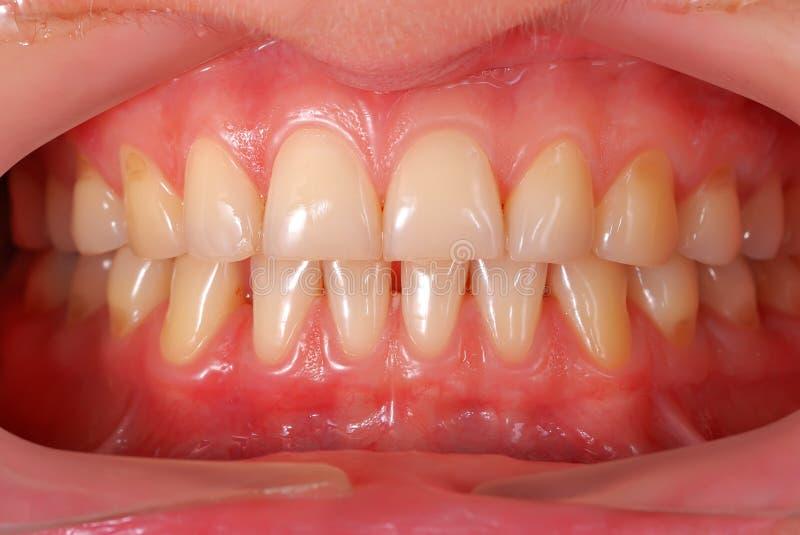 Menschliche Zähne stockfotografie
