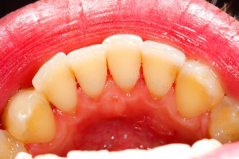 Menschliche Zähne stockfoto