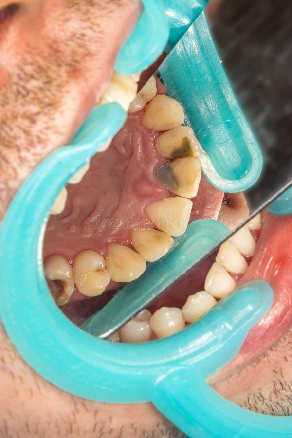 Menschliche Zähne mit Karies und Loch Nahaufnahmemakro in der zahnmedizinischen Klinik Behandlungs-Konzept stockbild