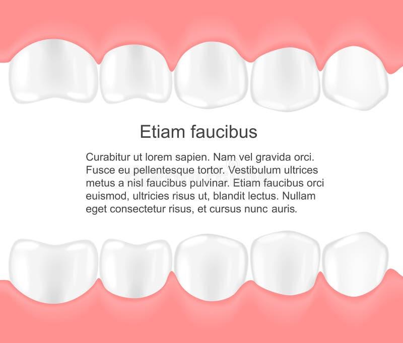 Menschliche Zähne In Mund Infographics Lokalisiert über Weißem ...