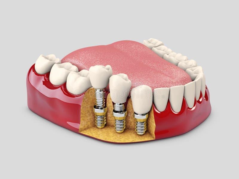 Menschliche Zähne und Zahnimplantat Abbildung 3D stock abbildung