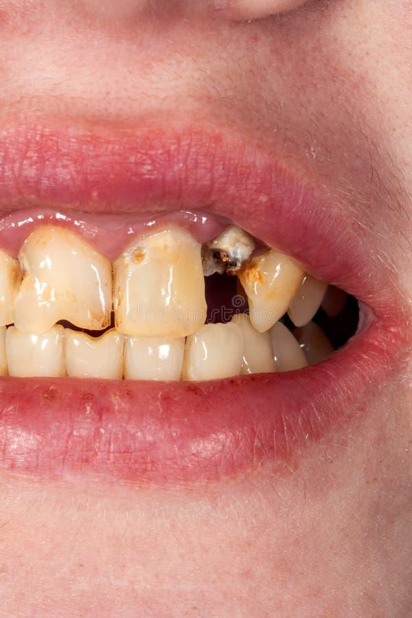 Menschliche Zahnnahaufnahme während der Behandlung und des Prosthetics mit Metall stockfotos