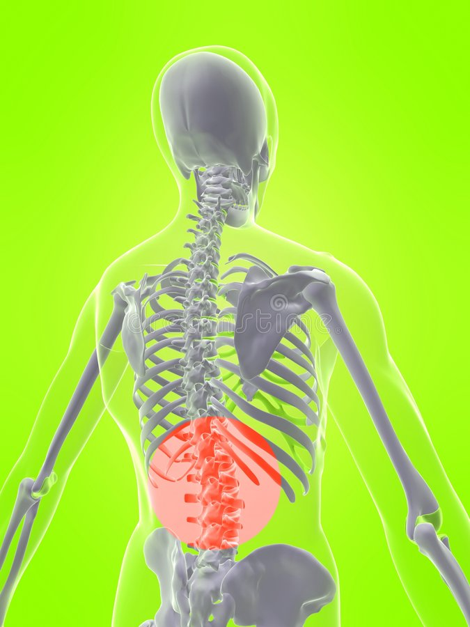 Menschlicher Dorn mit den Schmerz lizenzfreie abbildung