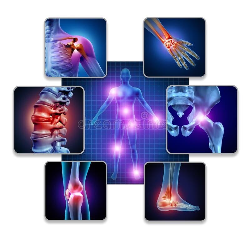Menschlicher Körper-Gelenkschmerzen lizenzfreie abbildung