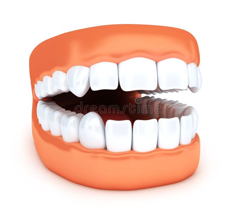Wunderbar Gebrochene Zähne Im Kiefer Verdrahtet Fotos - Elektrische ...