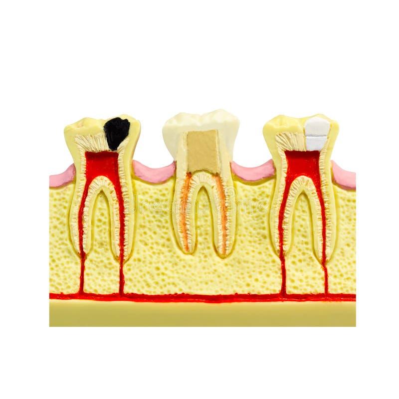 Menschlicher Zahngummiquerschnitt Zahn-Wurzelkanal Zahn führte Art-Zahnkonzept der Anatomiezahnfarbbildstomatologie flaches einze stockfotografie