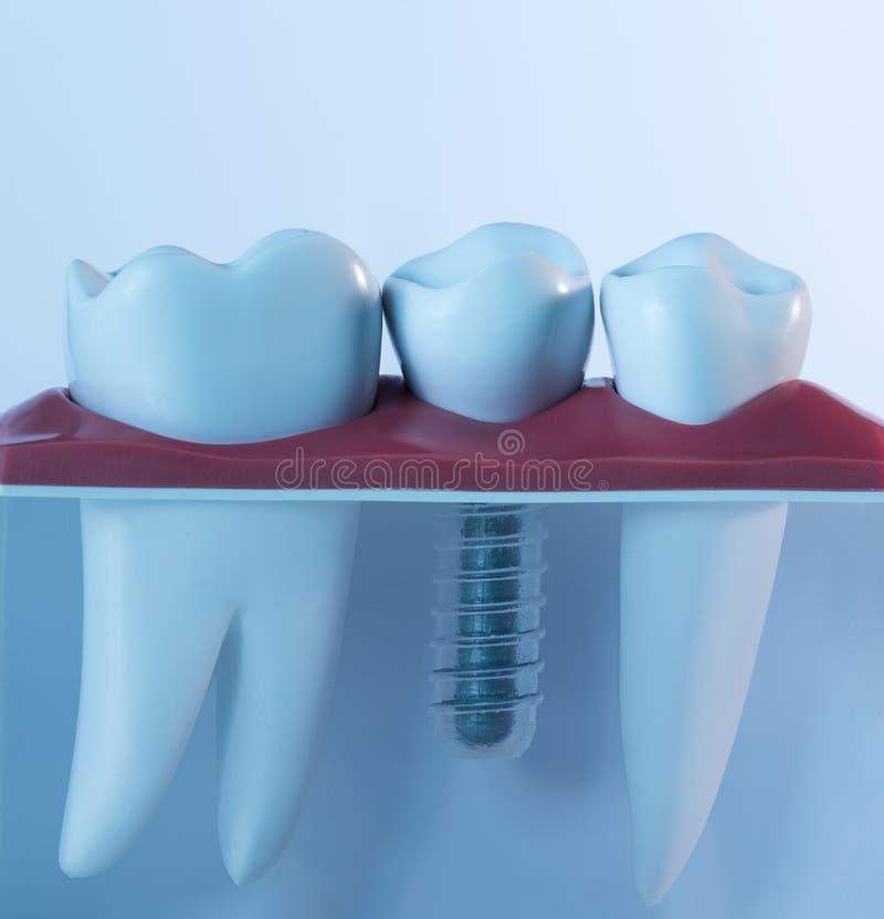 Menschliches Implantat des Zahnes stockfotos