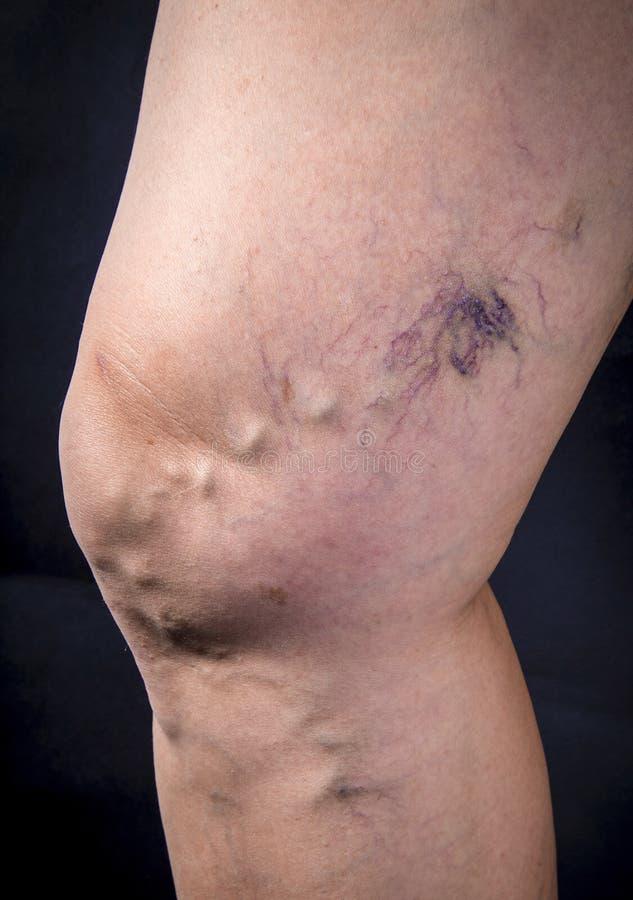 Menselijk been met spataders royalty-vrije stock afbeelding
